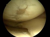 Knorpeldefekt Innere Oberschenkelrolle
