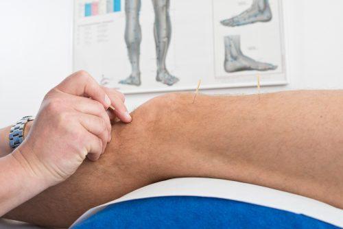 Akupunktur am Kniegelenk